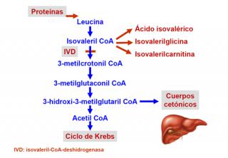 acidemia isovalérica