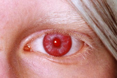albinismo tipo 4
