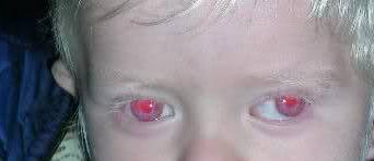 albinismo 1B