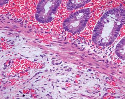 enfermedad intestinal