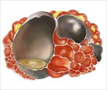 tumores mucinosos