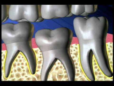 anquilosis de los dientes