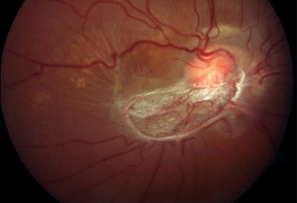 sindrome von hippel lindau