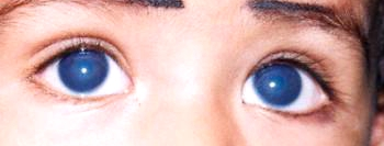 glaucoma de peters