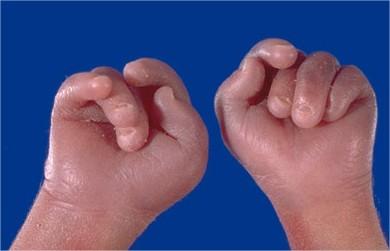 sindrome catel manzke