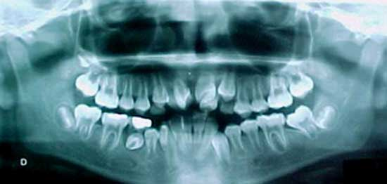 dentinogenosis imperfecta tipo 3