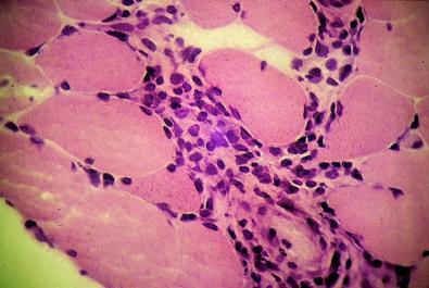 dermatomiositis