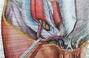 hernia abdominal