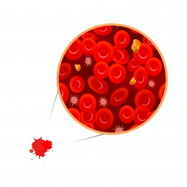 Leucemia de células peludas variante