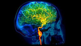 cerebrovascular