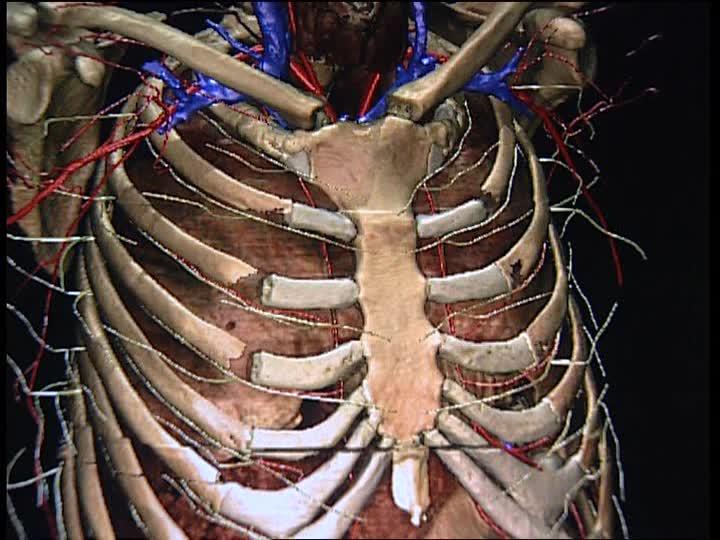 síndrome neurogénico de la salida torácica