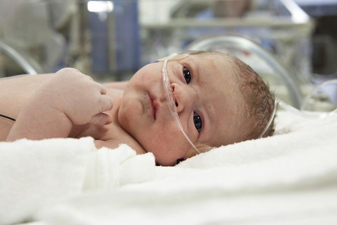 El New England Journal of Medicine (NEJM) anuncia los resultados de un estudio único sobre la enfermedad de Hirschsprung que afecta a los bebés