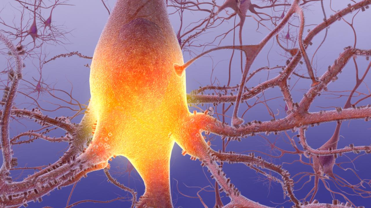 polineuropatías desmielinizantes