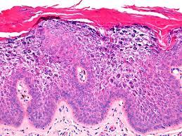 Queratodermia palmoplantar no epidermolítica