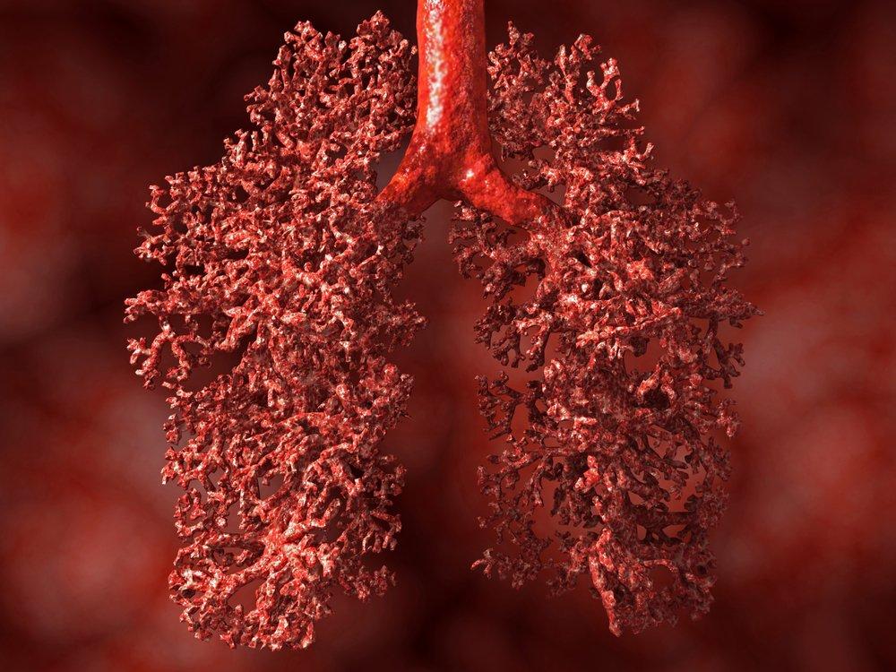 Proteinosis alveolar pulmonar idiopática