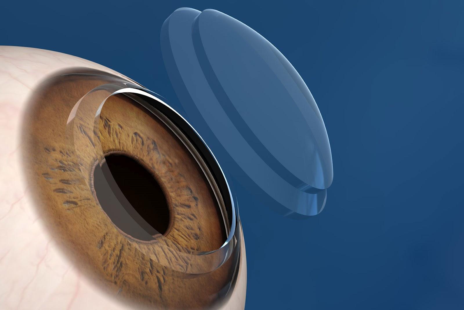 ojo, apraxia oculomotora