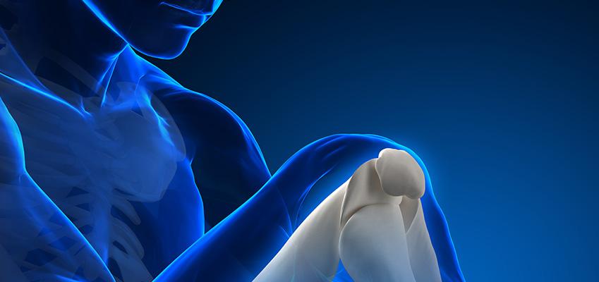Síndrome de displasia ectodérmica anhidrótica-inmunodeficiencia-osteopetrosis-linfedema
