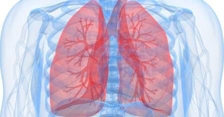 Bronquitis respiratoria - enfermedad pulmonar intersticial