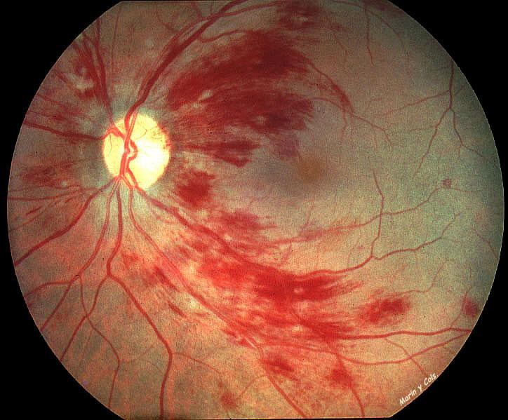 Retinopatía hereditaria vascular