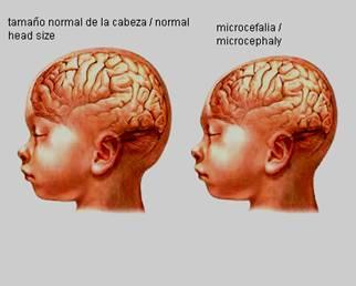 Microcefalia - anomalías digitales - deficiencia intelectual
