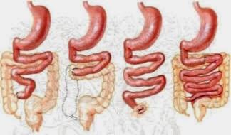Síndrome de intestino corto congénito