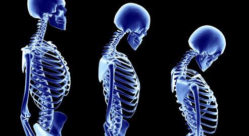 Displasia letal osteosclerótica de hueso