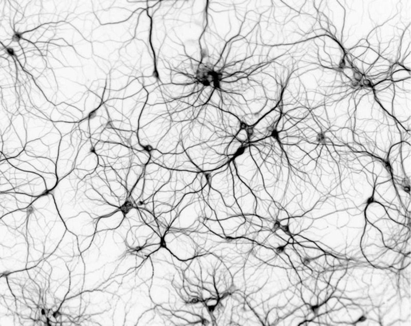 Distonia dopa-sensible autosómica recesiva