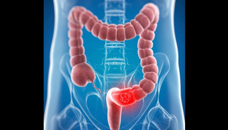 Síndrome de úlcera rectal solitaria