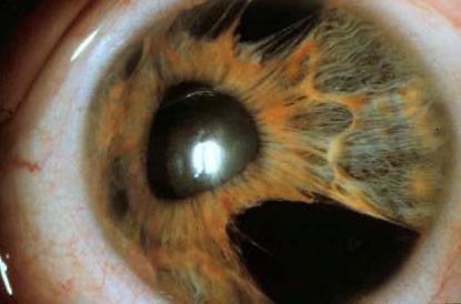 Síndrome endotelial iridocorneal