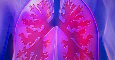 Avanza primera caracterización genómica para cáncer de pulmón en poblaciones latinoamericanas