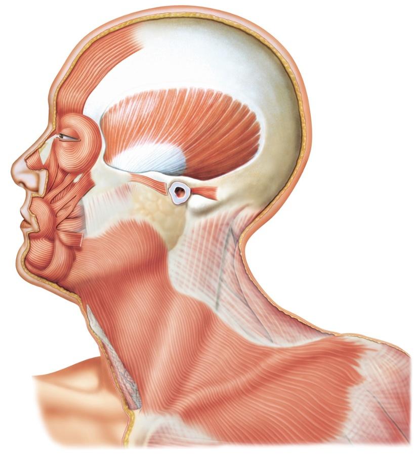 Cáncer de mama tipo glándula salivar