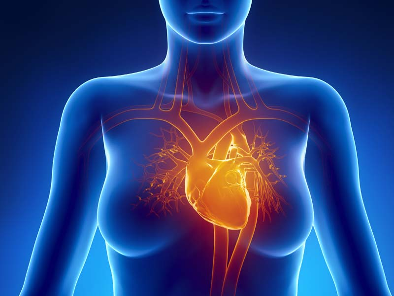 Cardiomiopatía histiocitoide
