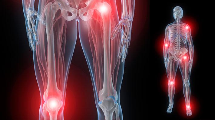 Melorreostosis con osteopoiquilia
