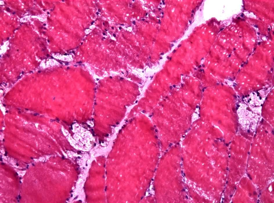 Enfermedad de almacenamiento de glucógeno por deficiencia de maltasa ácida