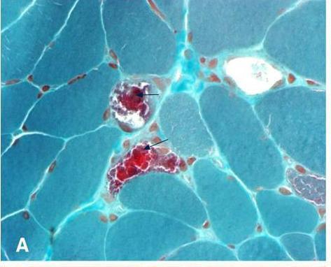 Lipomatosis simétrica múltiple