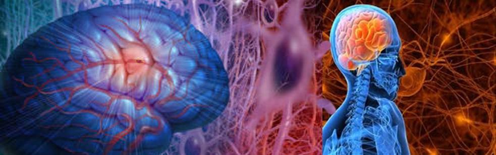 Epilepsia sintomática, síndrome de Panayiotopoulos