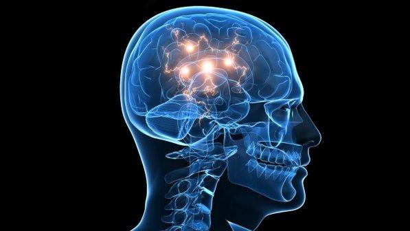 epilepsia mioclónica con espasticidad generalizada y déficit intelectual