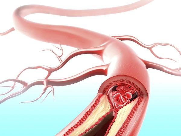 Amiloidosis ABetaA21G