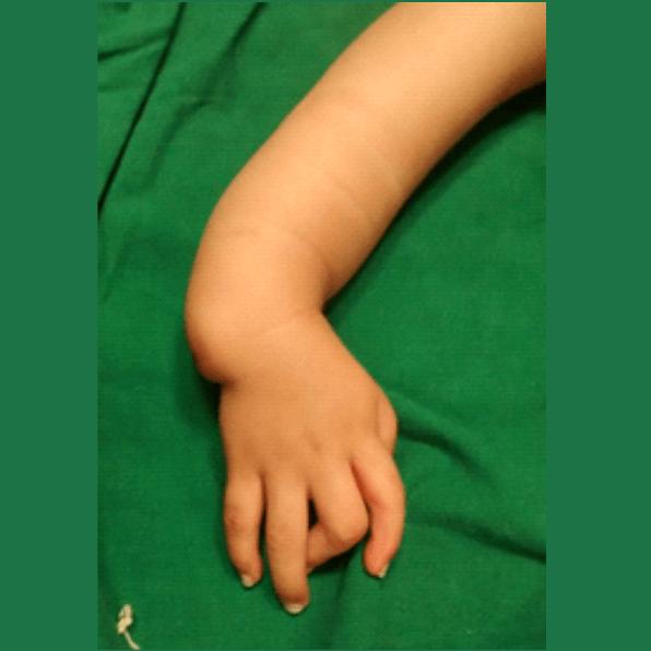 Hemimelia cubital