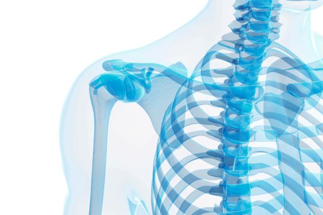 Heteroplasia ósea progresiva