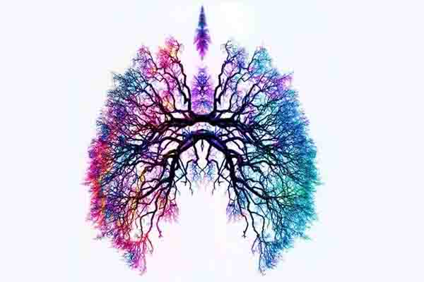 Malformación arterio-venosa pulmonar