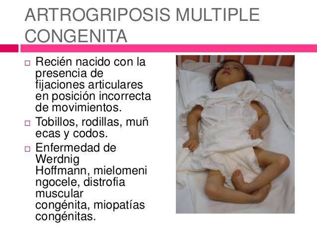 Artrogriposis múltiple congénita