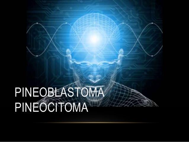 Pineocitoma