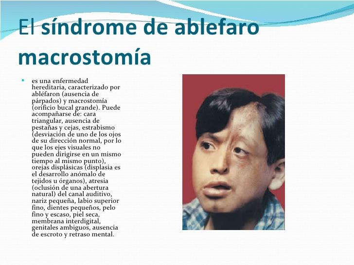 Síndrome de abléfaron - macrostomía
