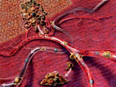 Neoplasia epitelial tímica
