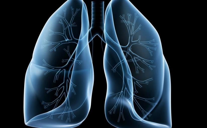 cáncer de pulmón de células pequeñas, tratamiento, Merck