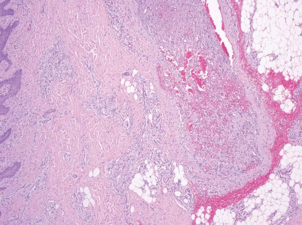 malformación capilar del labio inferior