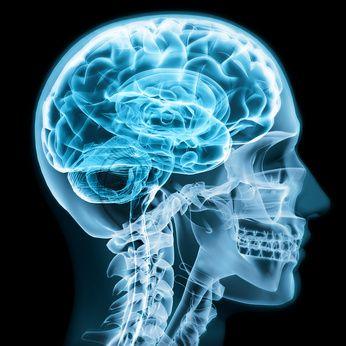 Síndrome de mioclonías - ataxia cerebelosa - sordera