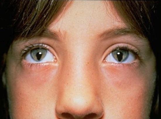 Síndrome del ojo de gato