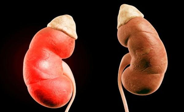 Hipomagnesemia primaria familiar con hipercalciuria y nefrocalcinosis
